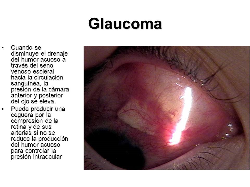 Glaucoma Cuando se disminuye el drenaje del humor acuoso a través del seno venoso escleral hacia la circulación sanguínea, la presión de la cámara ant