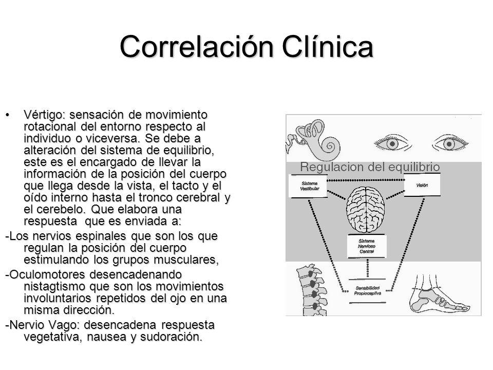 Correlación Clínica Vértigo: sensación de movimiento rotacional del entorno respecto al individuo o viceversa. Se debe a alteración del sistema de equ