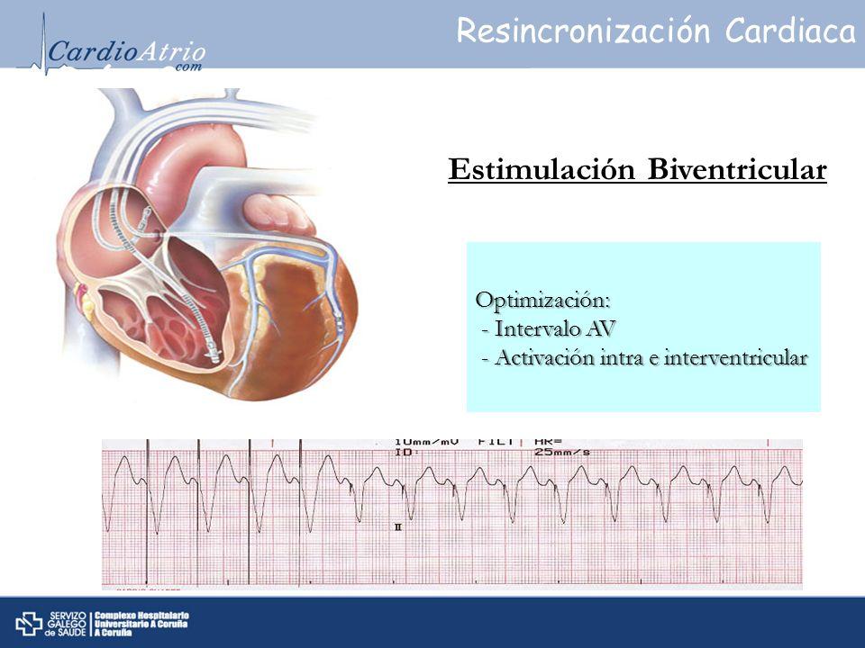 Qué es? Estimulación Biventricular Optimización: - Intervalo AV - Intervalo AV - Activación intra e interventricular - Activación intra e interventric