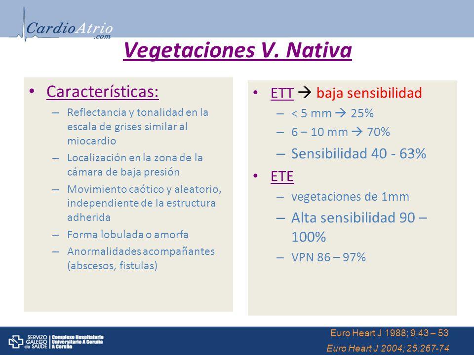 Vegetaciones V. Nativa Características: – Reflectancia y tonalidad en la escala de grises similar al miocardio – Localización en la zona de la cámara