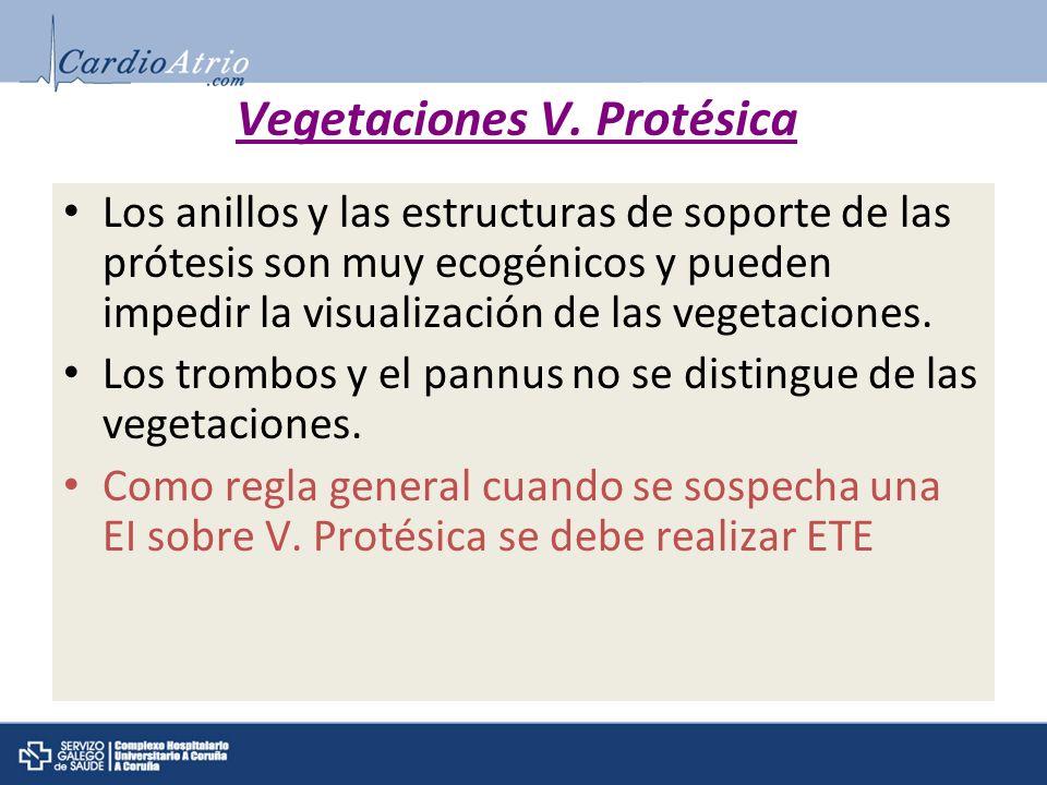 Vegetaciones V. Protésica Los anillos y las estructuras de soporte de las prótesis son muy ecogénicos y pueden impedir la visualización de las vegetac