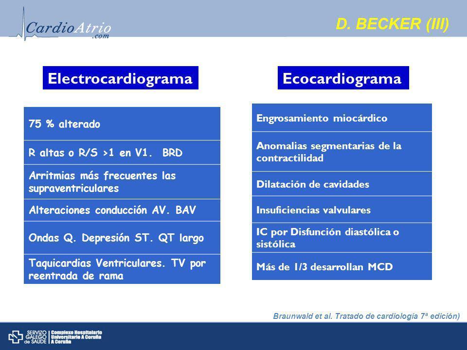 Electrocardiograma 75 % alterado R altas o R/S >1 en V1.