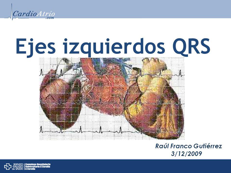 EJES IZQUIERDOS QRS EJE ELÉCTRICO 1.No es el anatómico 2.Se puede calcular su proyección sobre los planos: Frontal Horizontal Sagital