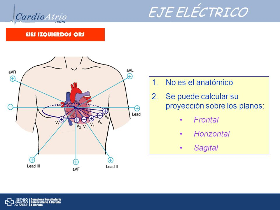 EJES IZQUIERDOS QRS EJEMPLO 2: Frecuencia: Ritmo: Eje eléctrico: Onda P: Intervalo PR: QRS: Segmento ST: Onda T: QTc: Frecuencia: ± 93 lpm.