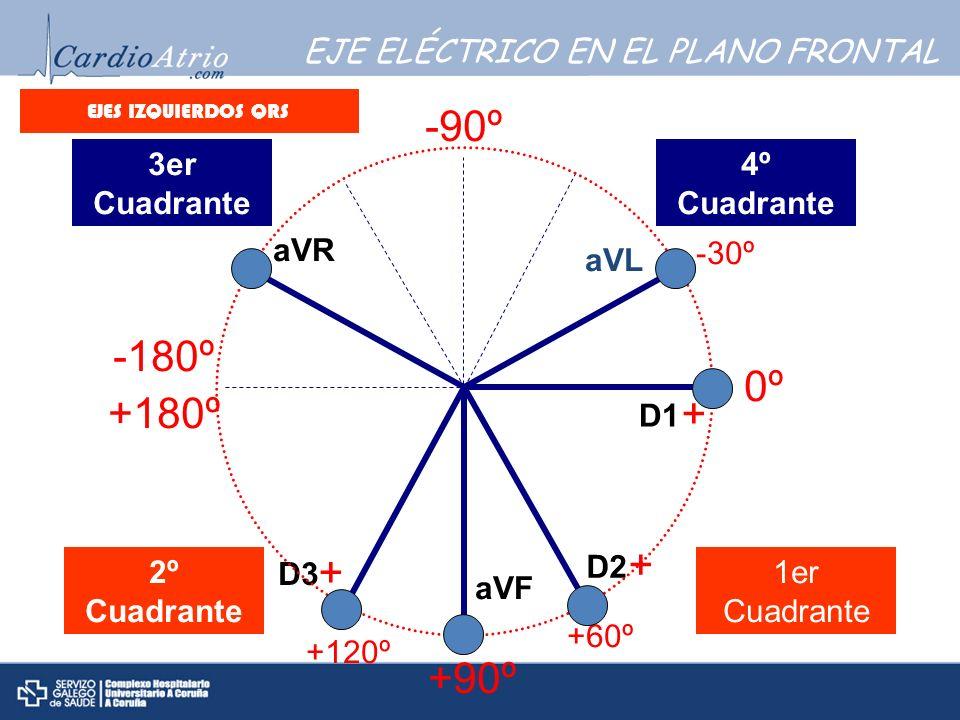 aVR aVL aVF D1 D2 D3 + + + 0º +90º -180º +180º -90º 1er Cuadrante 2º Cuadrante 3er Cuadrante 4º Cuadrante +60º -30º +120º EJES IZQUIERDOS QRS EJE ELÉC