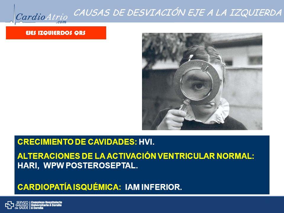 CAUSAS DE DESVIACIÓN EJE A LA IZQUIERDA CRECIMIENTO DE CAVIDADES: HVI. ALTERACIONES DE LA ACTIVACIÓN VENTRICULAR NORMAL: HARI, WPW POSTEROSEPTAL. CARD