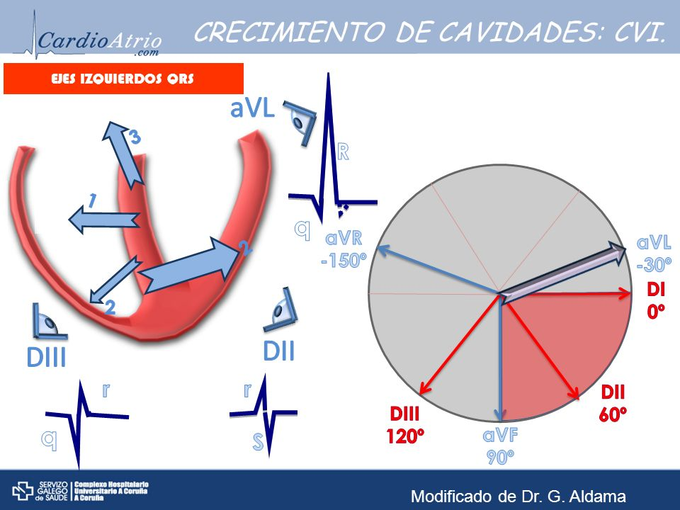 EJES IZQUIERDOS QRS EJEMPLO 6: Frecuencia: Ritmo: Eje eléctrico: Onda P: Intervalo PR: QRS: Segmento ST: Onda T: QTc: Frecuencia: ± 90 lpm.
