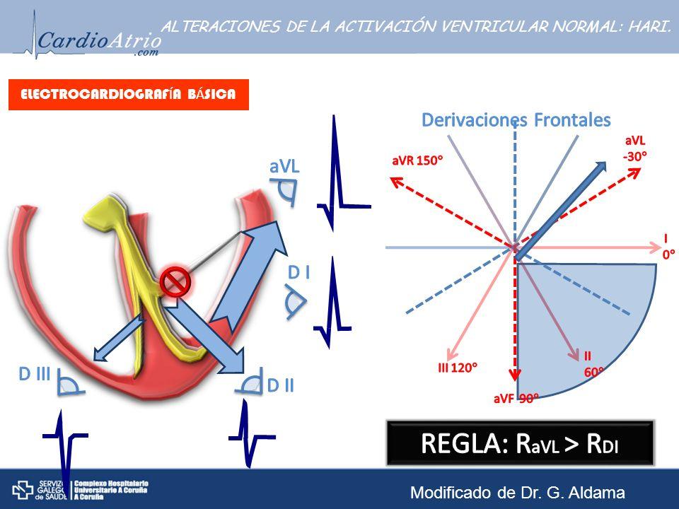 ELECTROCARDIOGRAF Í A B Á SICA ALTERACIONES DE LA ACTIVACIÓN VENTRICULAR NORMAL: HARI. Modificado de Dr. G. Aldama