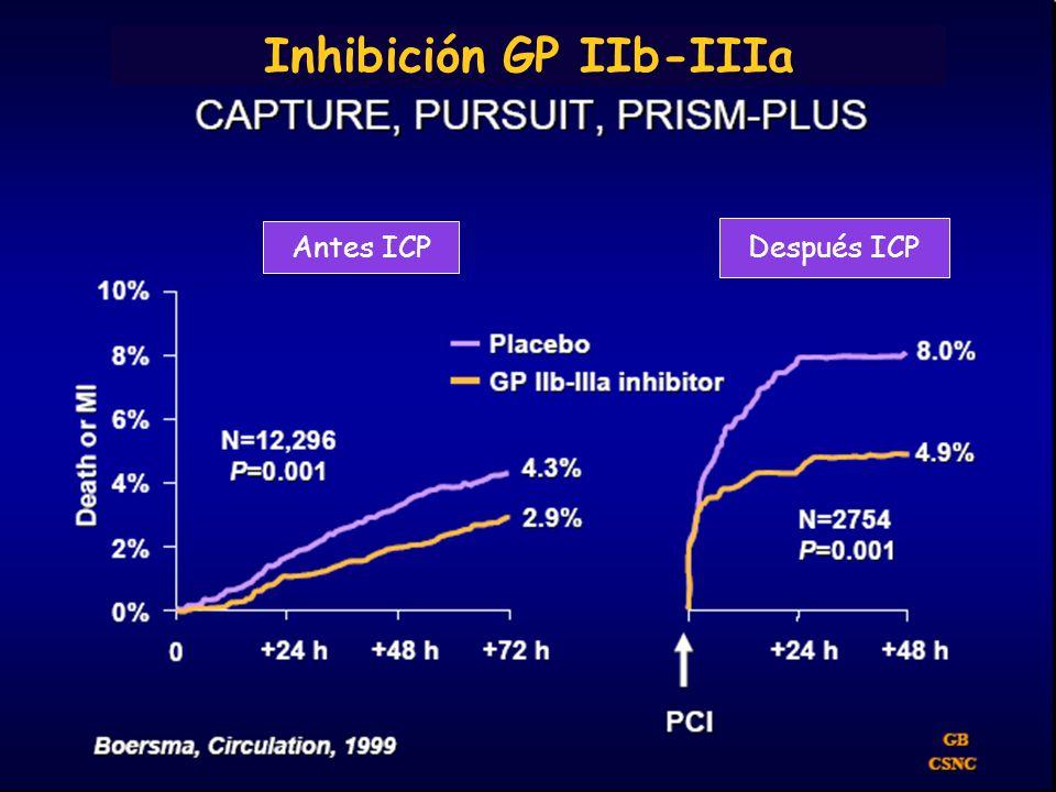 Paciente fumador con molestia centrotorácica Infarto agudo inferoposterolateral Inhibición GP IIb-IIIa Antes ICP Después ICP