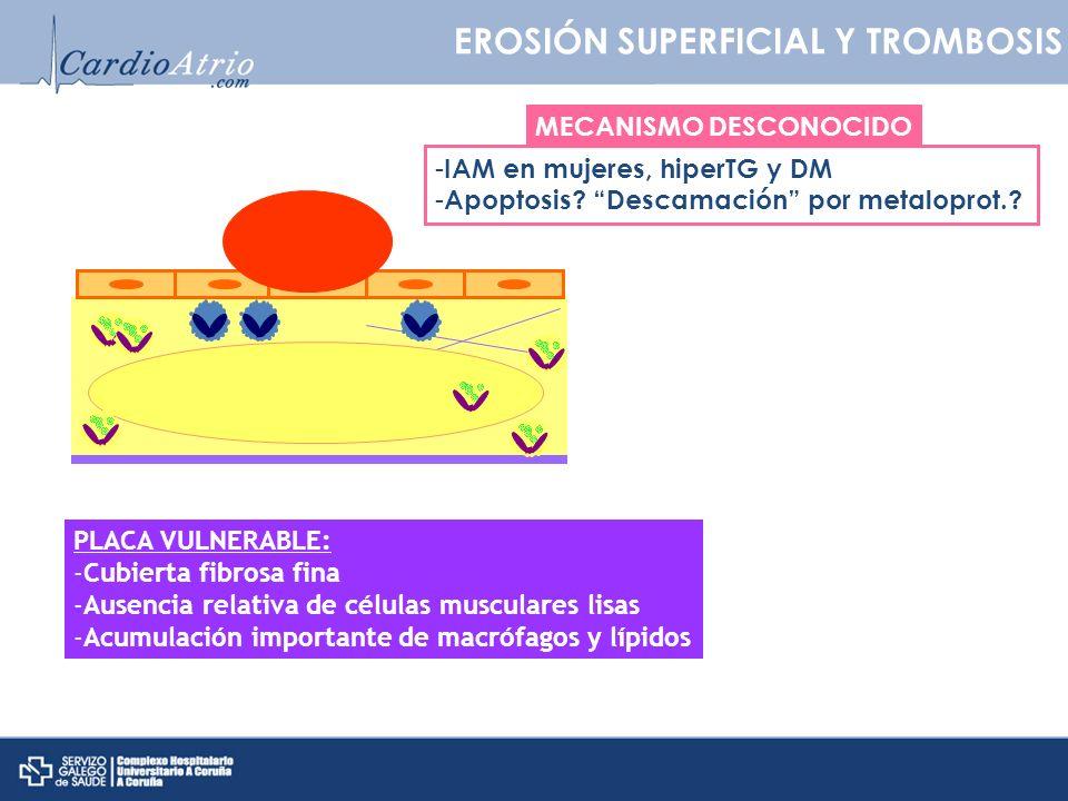 EROSIÓN SUPERFICIAL Y TROMBOSIS PLACA VULNERABLE: -Cubierta fibrosa fina -Ausencia relativa de células musculares lisas -Acumulación importante de mac