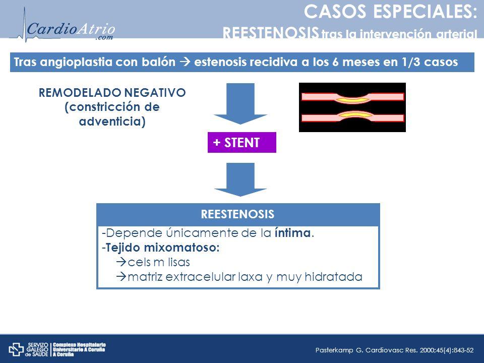 CASOS ESPECIALES: REESTENOSIS tras la intervención arterial Tras angioplastia con balón estenosis recidiva a los 6 meses en 1/3 casos REMODELADO NEGAT