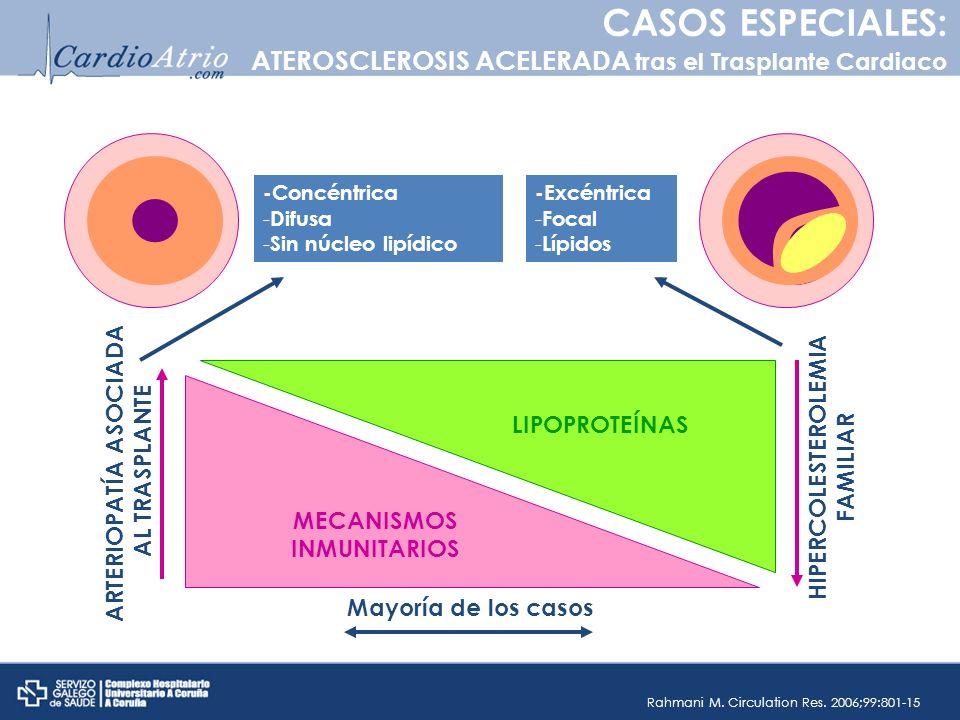 MECANISMOS INMUNITARIOS LIPOPROTEÍNAS ARTERIOPATÍA ASOCIADA AL TRASPLANTE HIPERCOLESTEROLEMIA FAMILIAR -Excéntrica - Focal - Lípidos -Concéntrica - Di