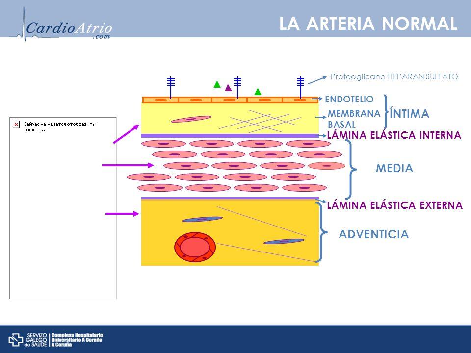 LA ARTERIA NORMAL ÍNTIMA ENDOTELIO Proteoglicano HEPARAN SULFATO MEMBRANA BASAL LÁMINA ELÁSTICA INTERNA MEDIA ADVENTICIA LÁMINA ELÁSTICA EXTERNA