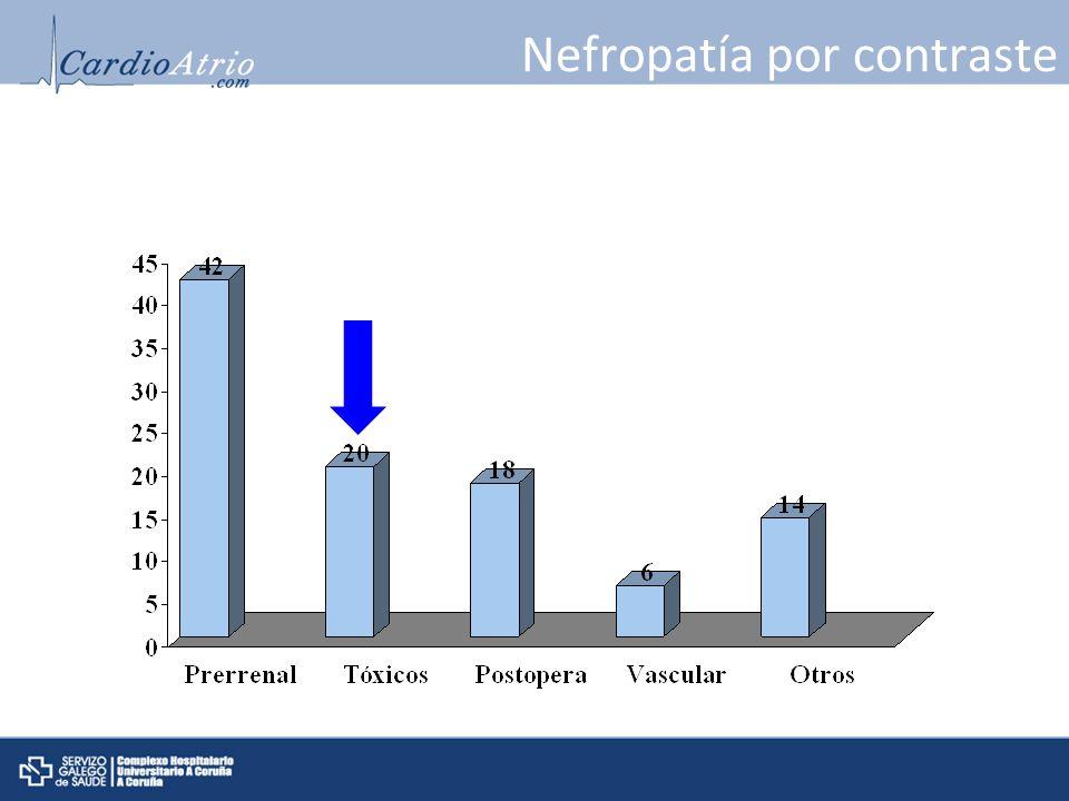 Nefropatía por contraste Fracaso renal agudo