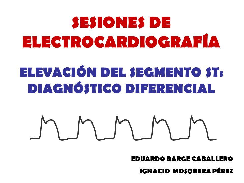 SESIONES DE ELECTROCARDIOGRAFÍA ELEVACIÓN DEL SEGMENTO ST: DIAGNÓSTICO DIFERENCIAL EDUARDO BARGE CABALLERO IGNACIO MOSQUERA PÉREZ