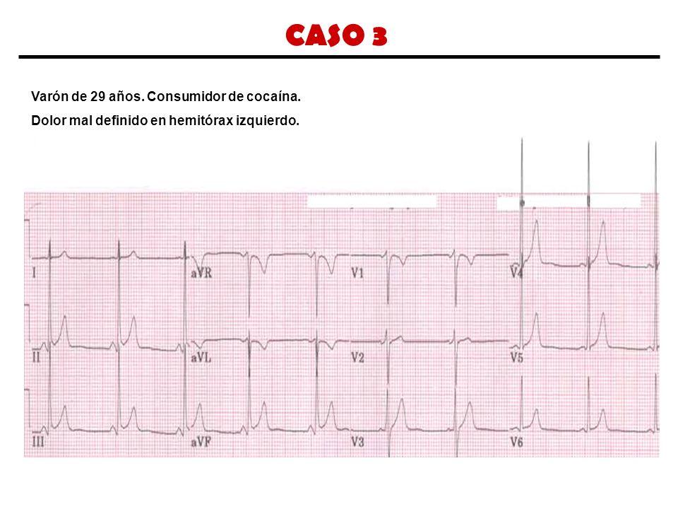 CASO 3 Varón de 29 años. Consumidor de cocaína. Dolor mal definido en hemitórax izquierdo.