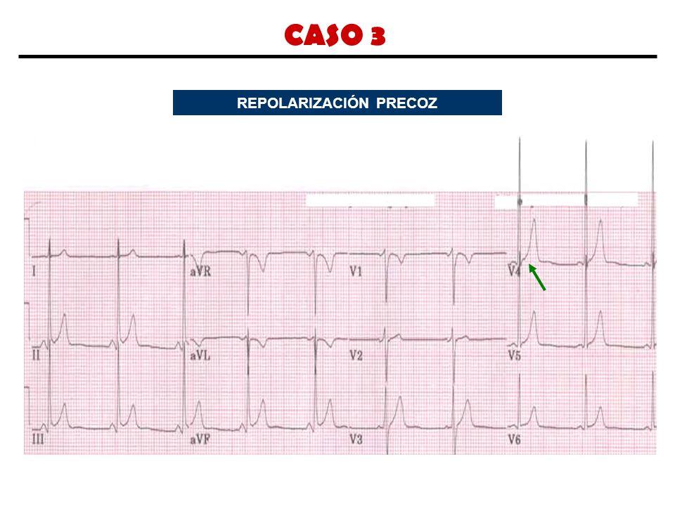 CASO 3 REPOLARIZACIÓN PRECOZ
