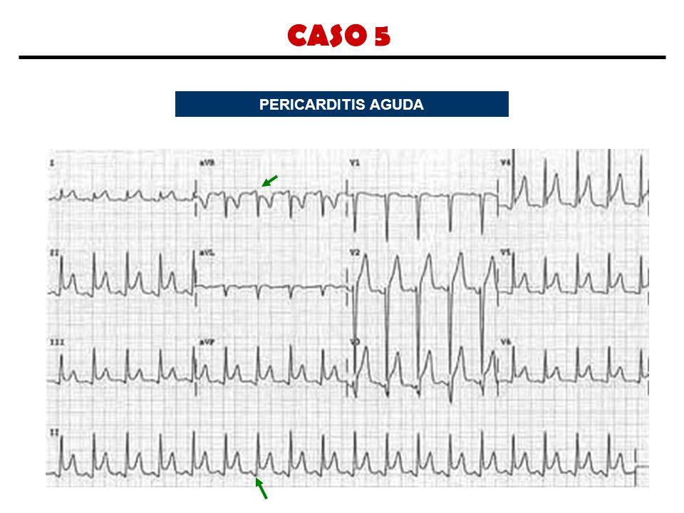 CASO 5 PERICARDITIS AGUDA