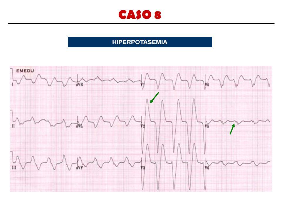 CASO 8 HIPERPOTASEMIA