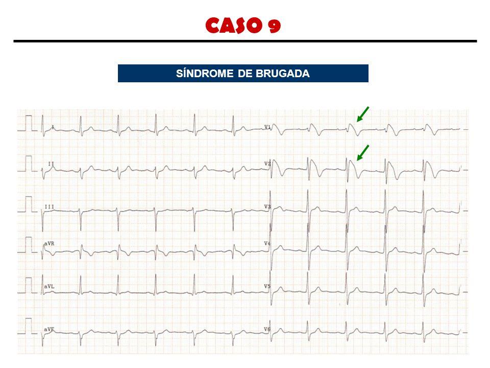 CASO 9 SÍNDROME DE BRUGADA