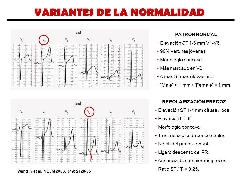 VARIANTES DE LA NORMALIDAD Wang K et al. NEJM 2003, 349: 2128-35 PATRÓN NORMAL Elevación ST 1-3 mm V1-V6. 90% varones jóvenes. Morfología cóncava. Más