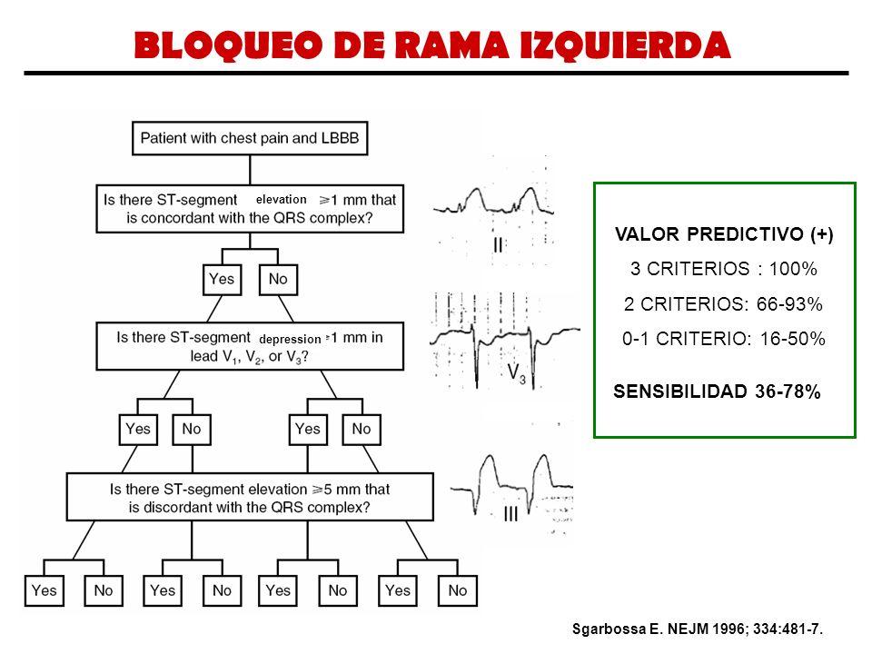 BLOQUEO DE RAMA IZQUIERDA Sgarbossa E. NEJM 1996; 334:481-7. VALOR PREDICTIVO (+) 3 CRITERIOS : 100% 2 CRITERIOS: 66-93% 0-1 CRITERIO: 16-50% SENSIBIL