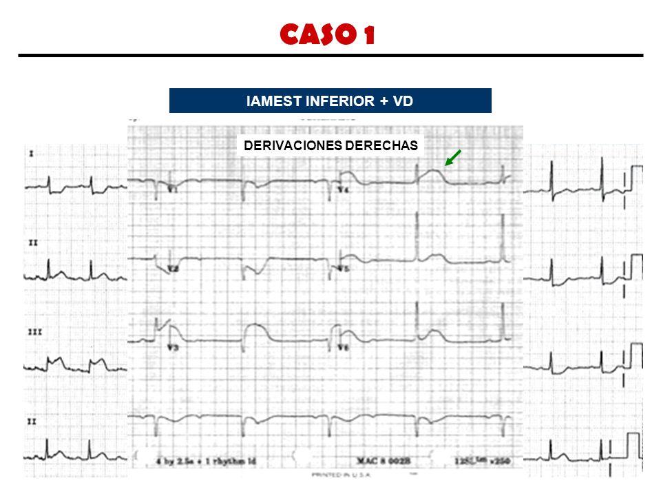 CASO 1 IAMEST INFERIOR + VD DERIVACIONES DERECHAS