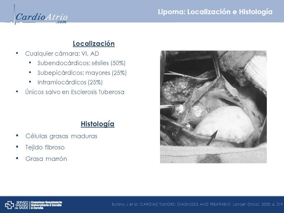 Localización Cualquier cámara: VI, AD Subendocárdicos: sésiles (50%) Subepicárdicos: mayores (25%) Intramiocárdicos (25%) Únicos salvo en Esclerosis T