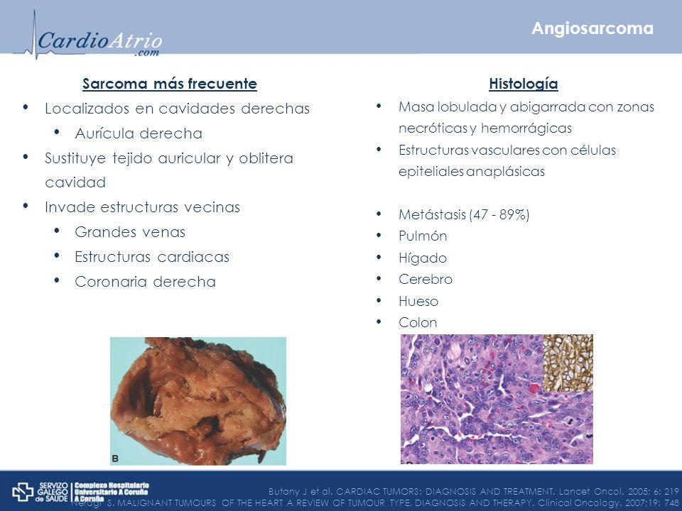 Sarcoma más frecuente Localizados en cavidades derechas Aurícula derecha Sustituye tejido auricular y oblitera cavidad Invade estructuras vecinas Gran