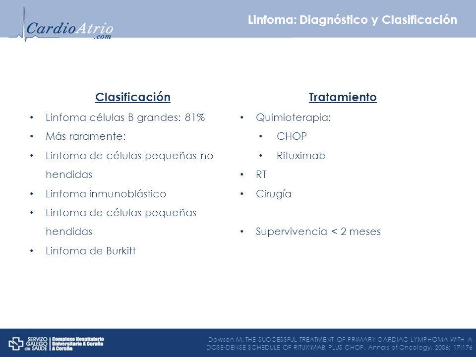 Clasificación Linfoma células B grandes: 81% Más raramente: Linfoma de células pequeñas no hendidas Linfoma inmunoblástico Linfoma de células pequeñas