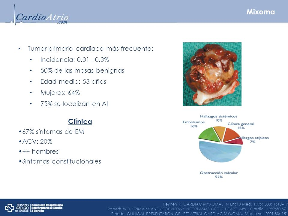 Tumor primario cardiaco más frecuente: Incidencia: 0.01 - 0.3% 50% de las masas benignas Edad media: 53 años Mujeres: 64% 75% se localizan en AI Clíni