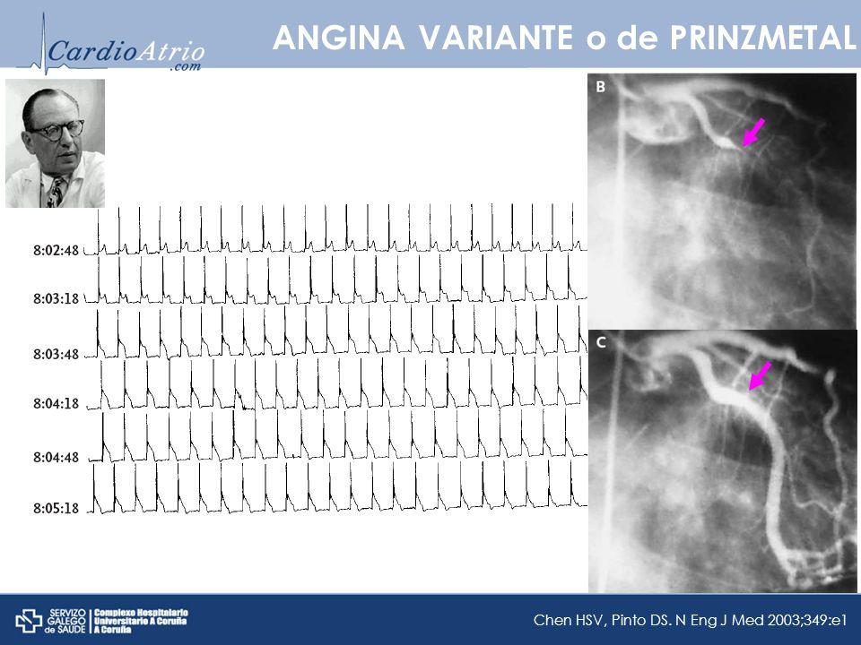 ANGINA VARIANTE o de PRINZMETAL Chen HSV, Pinto DS. N Eng J Med 2003;349:e1