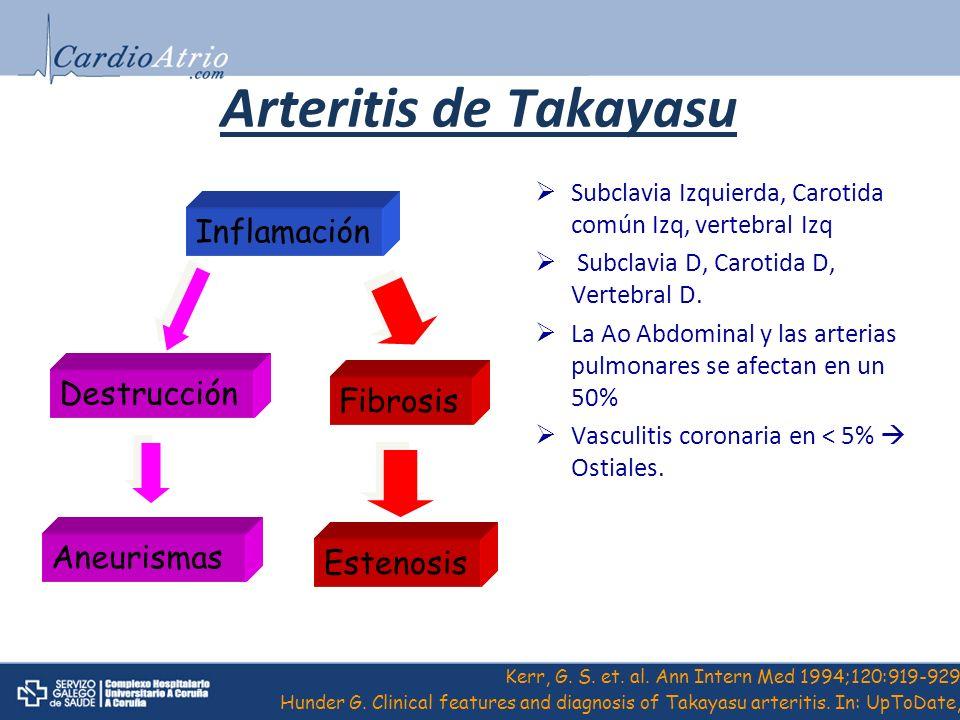 Arteritis de Takayasu Subclavia Izquierda, Carotida común Izq, vertebral Izq Subclavia D, Carotida D, Vertebral D. La Ao Abdominal y las arterias pulm