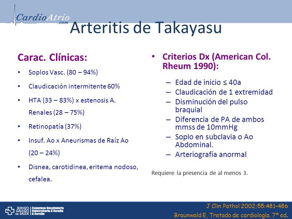 Arteritis de Takayasu Carac. Clínicas: Soplos Vasc. (80 – 94%) Claudicación intermitente 60% HTA (33 – 83%) x estenosis A. Renales (28 – 75%) Retinopa