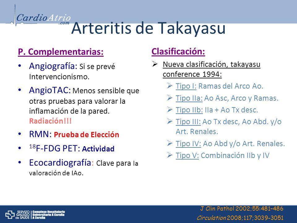 Arteritis de Takayasu P. Complementarias: Angiografía: Si se prevé Intervencionismo. AngioTAC: Menos sensible que otras pruebas para valorar la inflam