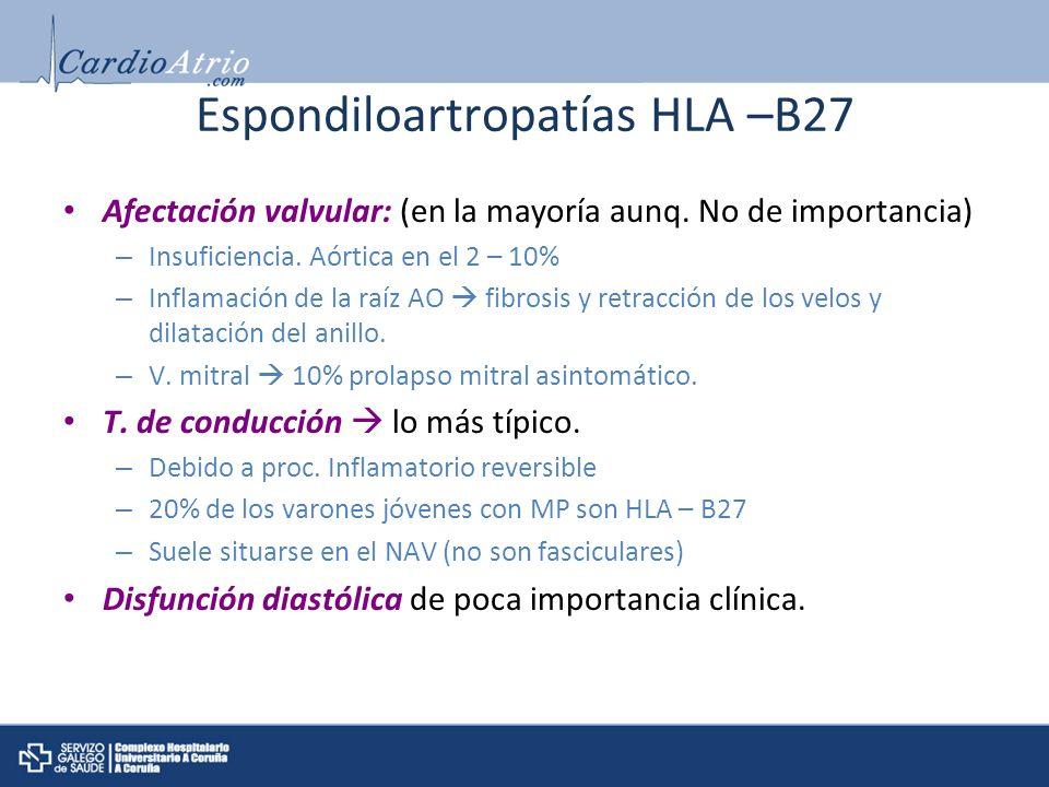 Espondiloartropatías HLA –B27 Afectación valvular: (en la mayoría aunq. No de importancia) – Insuficiencia. Aórtica en el 2 – 10% – Inflamación de la