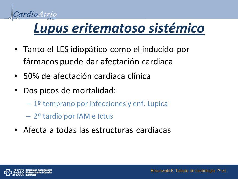 Lupus eritematoso sistémico Tanto el LES idiopático como el inducido por fármacos puede dar afectación cardiaca 50% de afectación cardiaca clínica Dos