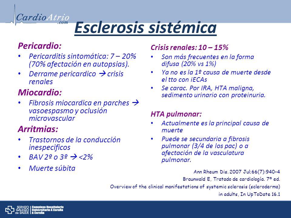 Esclerosis sistémica Pericardio: Pericarditis sintomática: 7 – 20% (70% afectación en autopsias). Derrame pericardico crisis renales Miocardio: Fibros