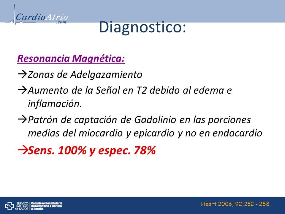 Diagnostico: Resonancia Magnética: Zonas de Adelgazamiento Aumento de la Señal en T2 debido al edema e inflamación. Patrón de captación de Gadolinio e