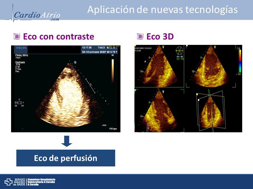 Aplicación de nuevas tecnologías Eco con contrasteEco 3D Eco de perfusión