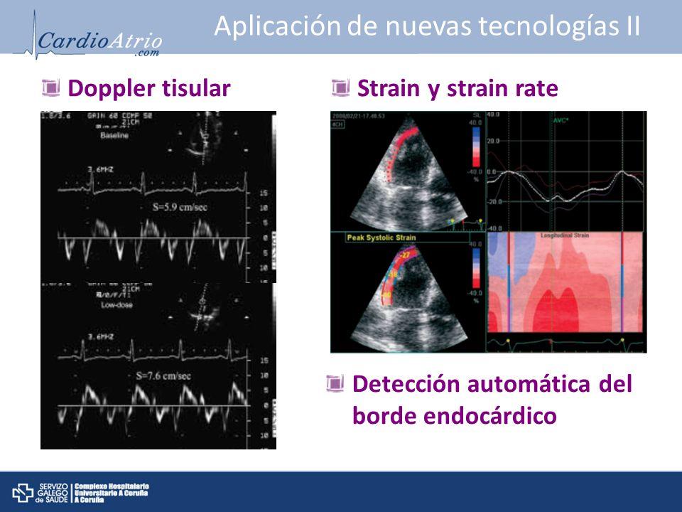 Aplicación de nuevas tecnologías II Doppler tisularStrain y strain rate Detección automática del borde endocárdico