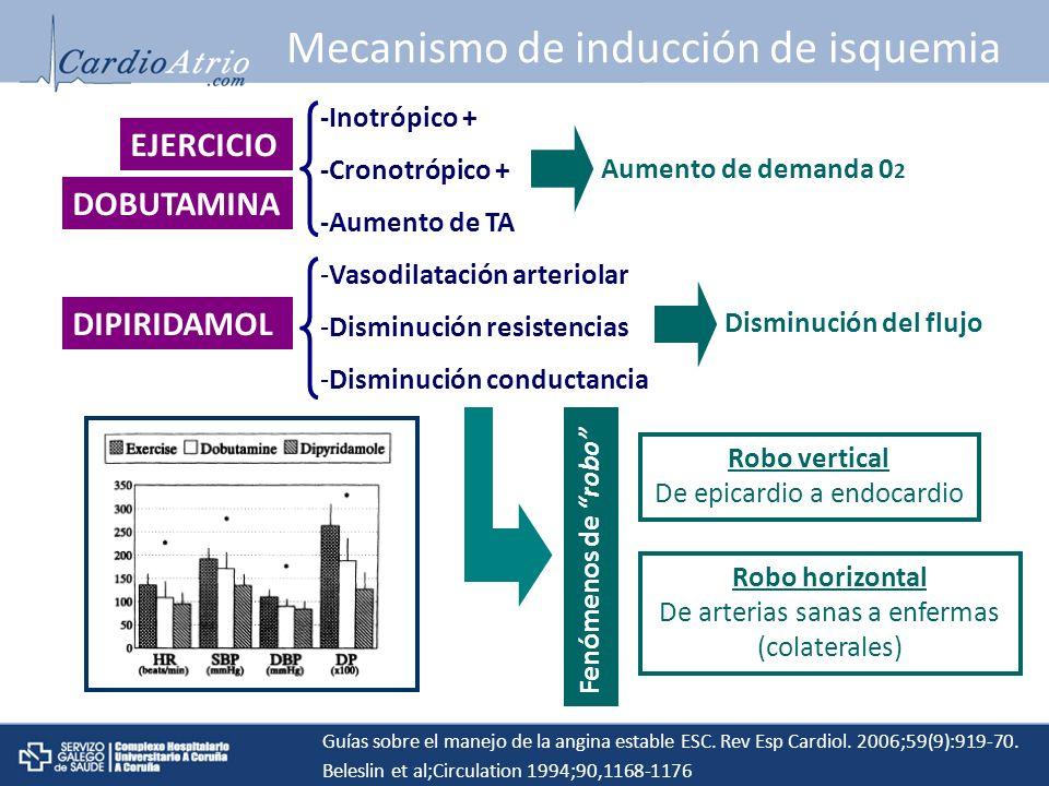Mecanismo de inducción de isquemia EJERCICIO DOBUTAMINA -Inotrópico + -Cronotrópico + -Aumento de TA Aumento de demanda 0 2 Robo vertical De epicardio