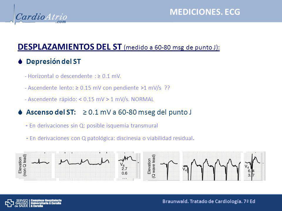 DESPLAZAMIENTOS DEL ST (medido a 60-80 msg de punto J): Depresión del ST - Horizontal o descendente : 0.1 mV. - Ascendente lento: 0.15 mV con pendient