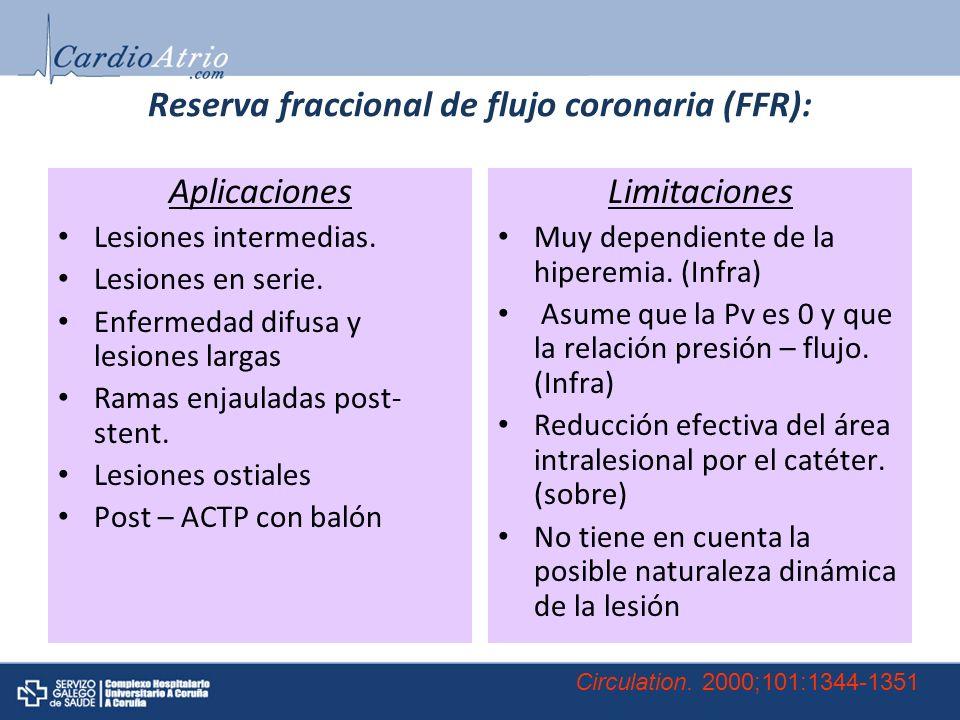 Reserva fraccional de flujo coronaria (FFR): Aplicaciones Lesiones intermedias.