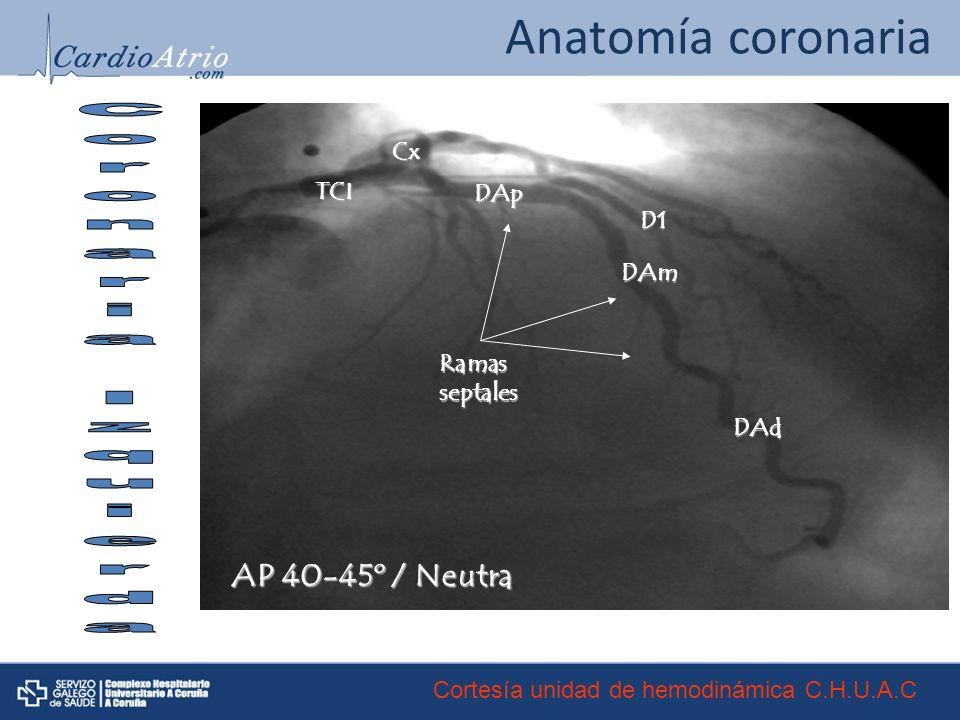 Anatomía coronaria TCI Cx Ramasseptales DAp DAm DAd D1 AP 40-45º / Neutra Cortesía unidad de hemodinámica C.H.U.A.C