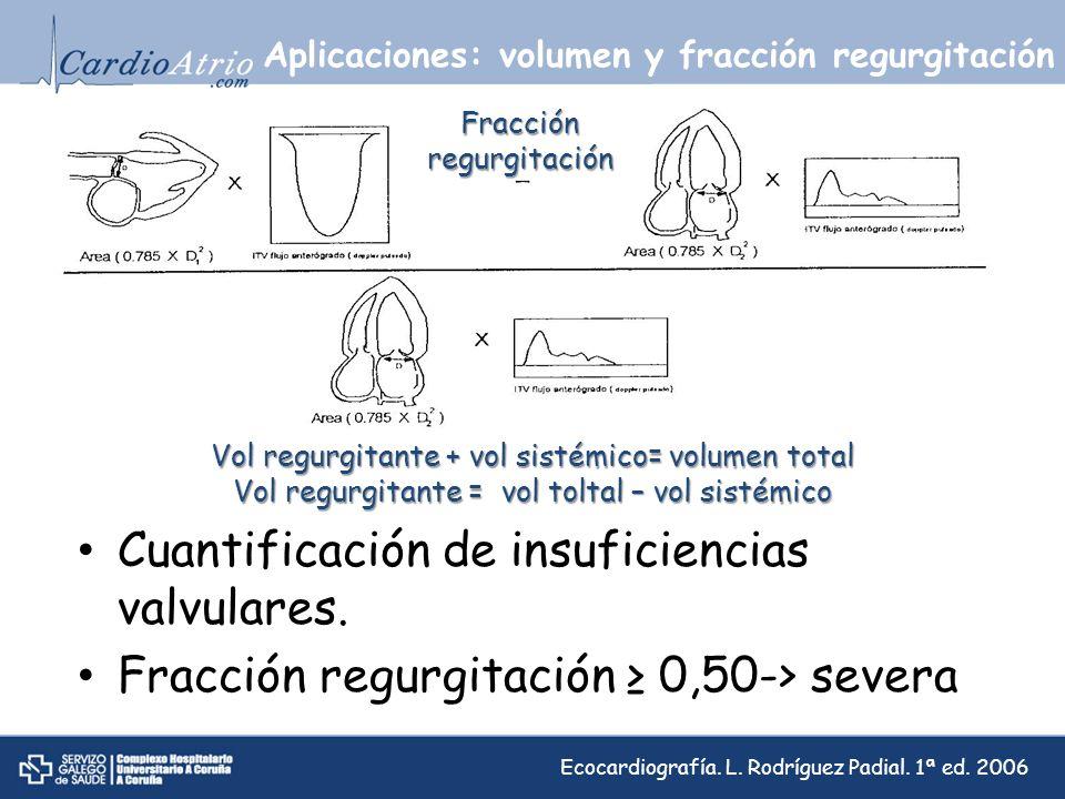 Aplicaciones: volumen y fracción regurgitación Cuantificación de insuficiencias valvulares. Fracción regurgitación 0,50-> severa Vol regurgitante + vo