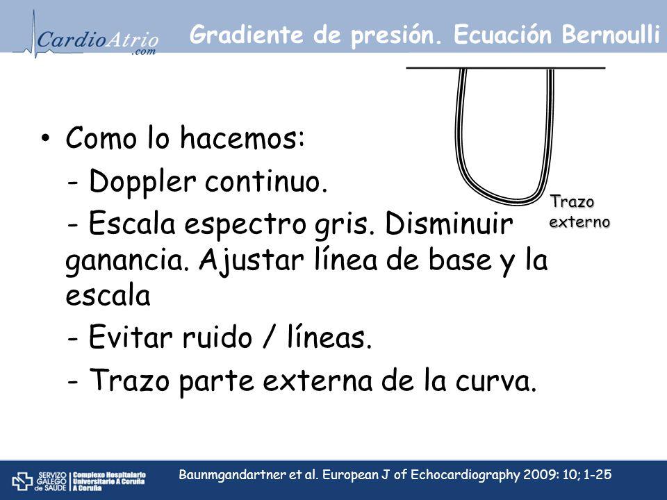 Como lo hacemos: - Doppler continuo. - Escala espectro gris. Disminuir ganancia. Ajustar línea de base y la escala - Evitar ruido / líneas. - Trazo pa