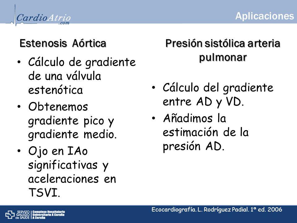 Estenosis Aórtica Cálculo de gradiente de una válvula estenótica Obtenemos gradiente pico y gradiente medio. Ojo en IAo significativas y aceleraciones