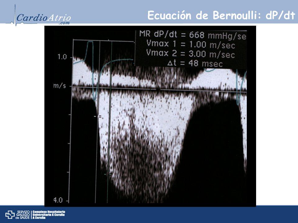 Ecuación de Bernoulli: dP/dt