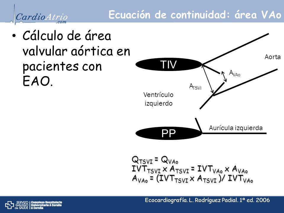 Ecuación de continuidad: área VAo Cálculo de área valvular aórtica en pacientes con EAO. TIV PP Q TSVI = Q VAo IVT TSVI x A TSVI = IVT VAo x A VAo A V